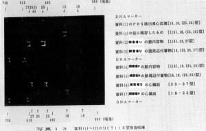 飯塚事件DNA鑑定